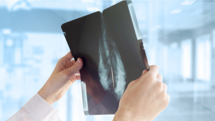 Maccabi Healthcare Services - mammography - Inteligencia Artificial